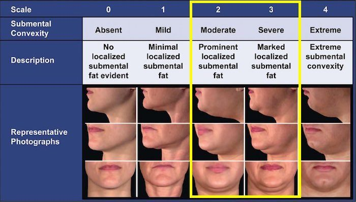 kybella-belkyra-double-chin-guide-1-1