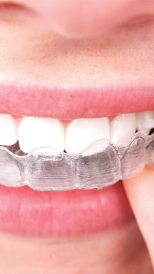INVISALIGN: The removable orthodontic and virtually transparent