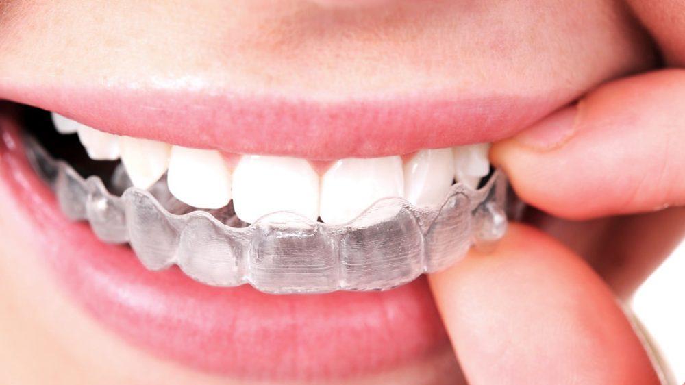 INVISALIGN: La ortodoncia removible y prácticamente transparente
