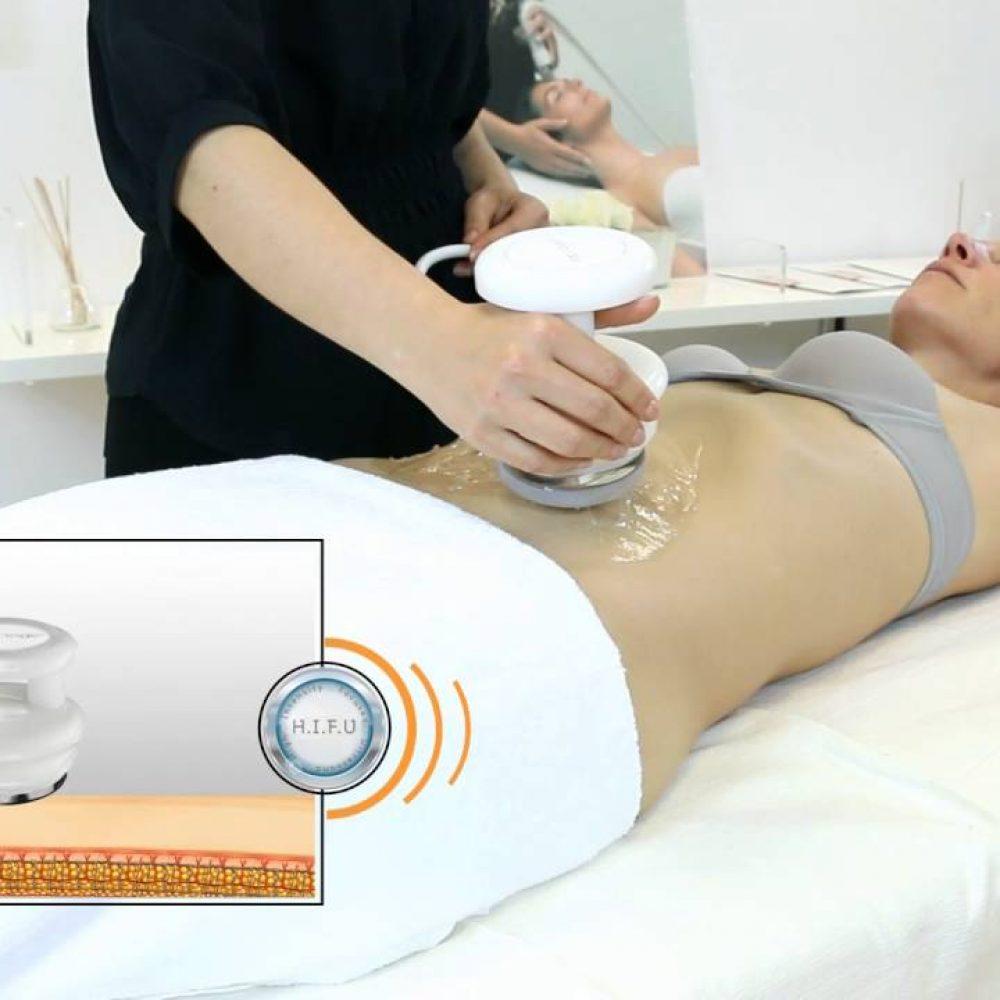 Deep Slim, el tratamiento perfecto para la grasa localizada