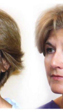 Hilos tensores Sinclair: rostros armoniosos y tersos