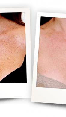 Protege, cuida y mejora tu piel