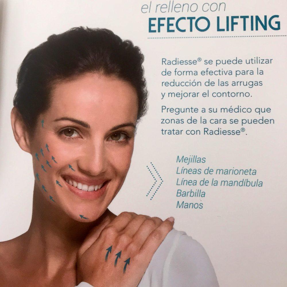 El relleno con efecto lifting